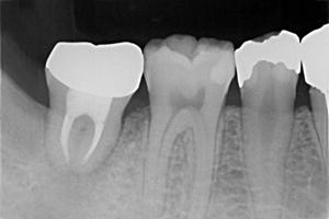 平野歯科クリニックの自家歯牙移植②
